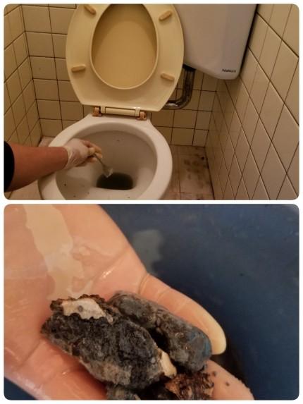 トイレ尿石