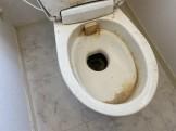 便器尿石汚れ